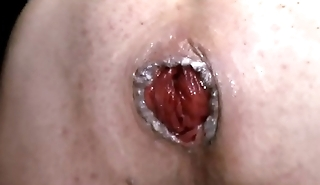 Huge Anal Prolapse Pumping 1m